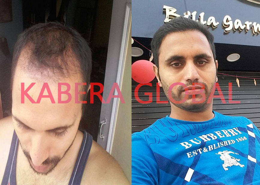Natural Hair Transplant Clinic Results