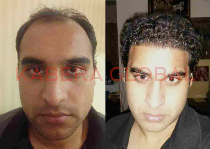 Natural Hair Transplant in India