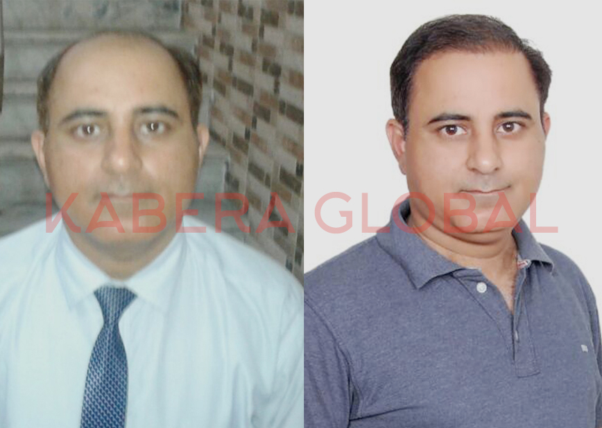 Affordable FUE Hair Transplant India