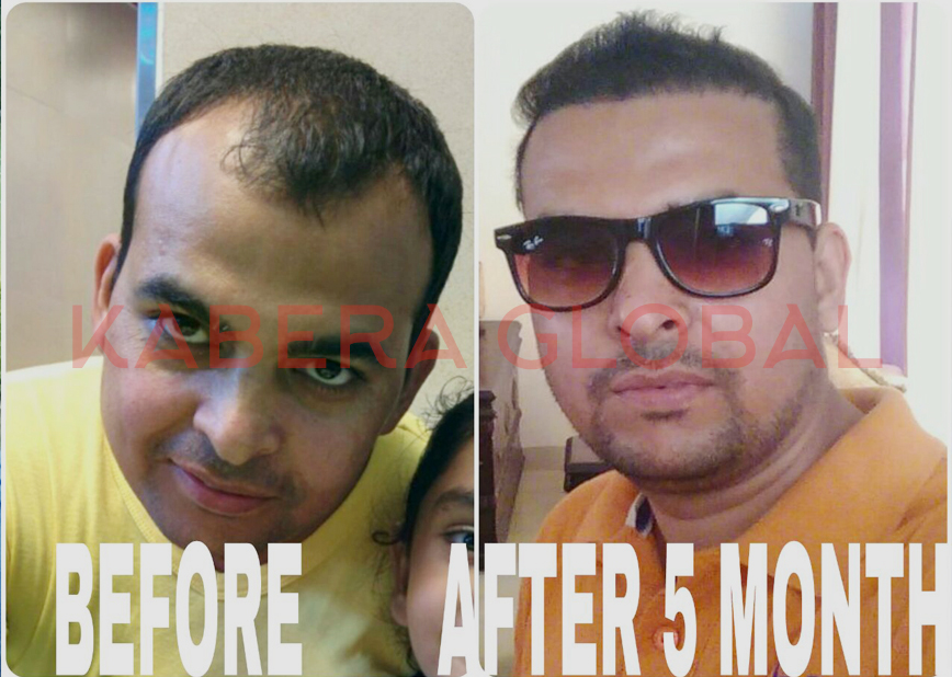 Hair loss treatment Testimonials